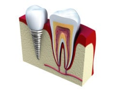 dental implants croton on hudson ny