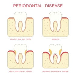 gum disease treatment westchester county ny