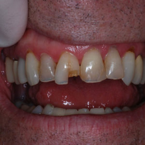Emergency Same Day Dentistry Before Image